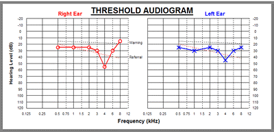 Threshold audiogram